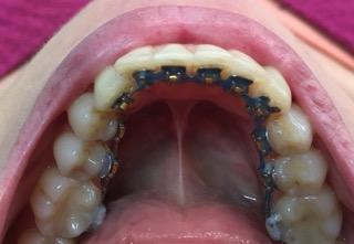 ortodontia-lingual-2