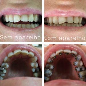 ortodontia-lingual