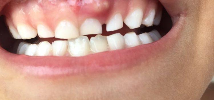 Abscesso na dentição decídua