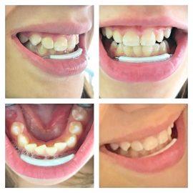 Lip Bumper ou Placa lábio ativa